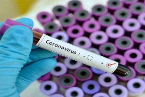 थप १४४ जनामा कोरोना संक्रमण, सक्रिय संक्रमितको संख्या ६६१३